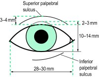 Fig. A16 Average dimensions of the normal palpebral aperture of a Caucasian eye