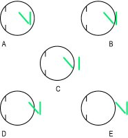 Fig. A22 Clinical types of astigmatism (A, compound myopic; B, simple myopic; C, mixed; D, simple hyperopic; E, compound hyperopic)