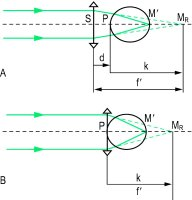Fig. C21 Optical principle of the correction of a hyperopic eye with A, a spectacle lens, B, a contact lens (M R , far point of the eye)