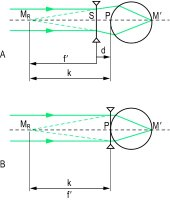 Fig. C22 Optical principle of the correction of a myopic eye with A, a spectacle lens, B, a contact lens (M R , far point of the eye)