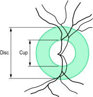 Fig. R1 Diagram of the physiological cup with a cup-disc ratio of 0
