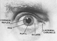 Fig. R5 Frontal view of the right eye