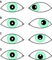 Fig. S15 A, left convergent strabismus; B, left divergent strabismus; C, left hypertropia; D, left hypotropia