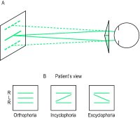 Fig. T5 A, Maddox double prism used to measure cyclophoria. If, for example, the double prism is placed in front of the right eye (ensuring that the common base exactly bisects the the pupil horizontally) the patient sees two parallel horizontal lines (discontinuous lines); B, with both eyes the patient sees three lines: if the central line L seen by the left eye appears parallel to both the upper and lower lines R produced by the double prism, the subject is free of cyclophoria, otherwise cyclophoria is present