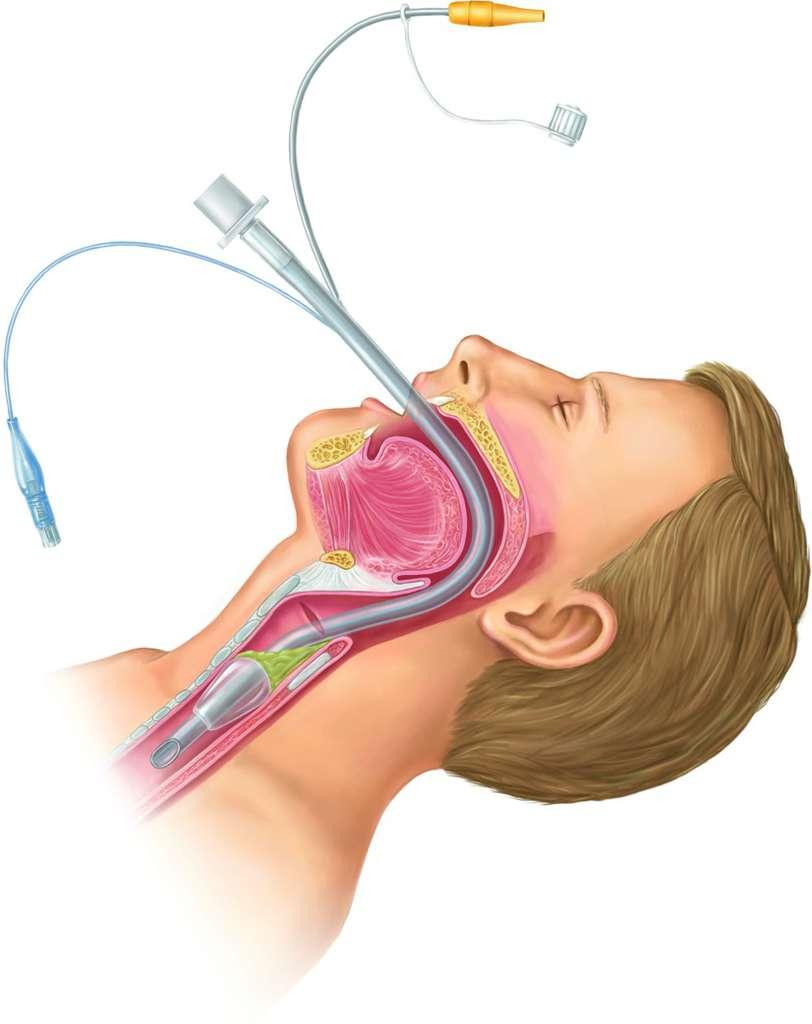 Endotracheal intubation   definition of endotracheal intubation by ...