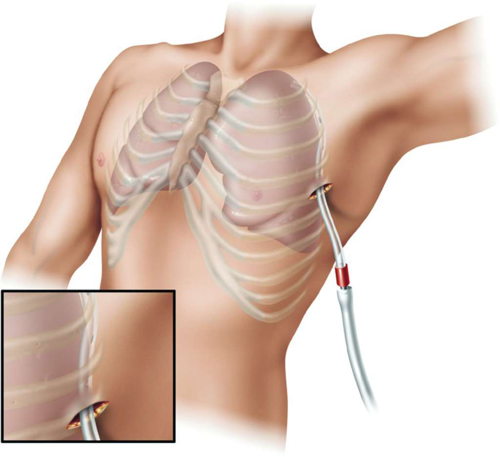 Thoracostomy tube | definition of thoracostomy tube by Medical ...