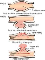 aneurysm | definition of aneurysm by medical dictionary, Human Body