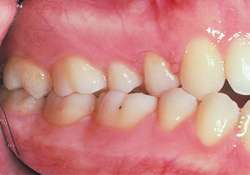Angle's classification of malocclusion | definition of Angle's ...