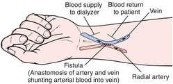 Arteriovenous fistula | definition of arteriovenous fistula by ...