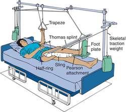 balanced suspension definition of balanced suspension by medical dictionary. Black Bedroom Furniture Sets. Home Design Ideas