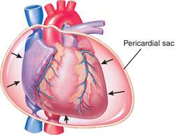cardiac tamponade | definition of cardiac tamponade by medical, Skeleton