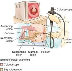 What is a colonoscopy?