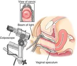 sex after colposcopy procedure
