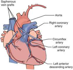coronary artery bypass graft | definition of coronary artery, Cephalic Vein