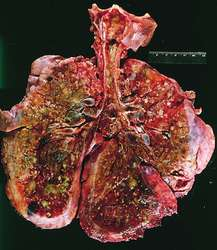 fibrocystic disease of lung in adults