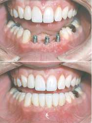 Dental prosthesis | definition of dental prosthesis by Medical ...