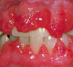 Gingival hyperplasia | definition of gingival hyperplasia by ...