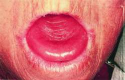 glossitis | definition of glossitis by medical dictionary, Skeleton