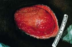 Granulation tissue | definition of granulation tissue by Medical ...