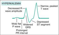 hyperkalemia | definition of hyperkalemia by medical dictionary, Skeleton