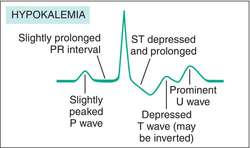 hypokalemia | definition of hypokalemia by medical dictionary, Skeleton