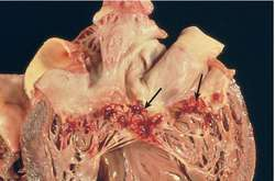 Infective endocarditis | definition of infective endocarditis by ...