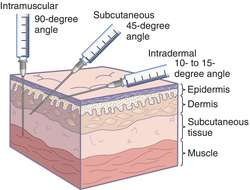 subdermal corticosteroid acne treatment