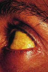 Jaundice: Why It Happens in Adults