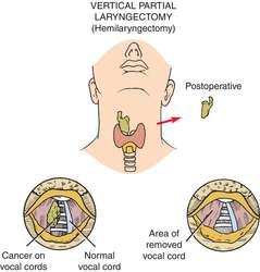 Laryngectomy | definition of laryngectomy by Medical dictionary