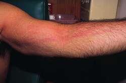 lymphangitis   definition of lymphangitis by medical dictionary, Skeleton