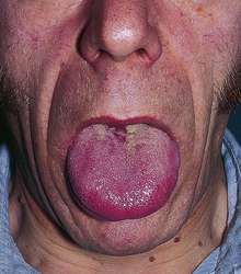 Differential Diagnosis of Macroglossia - Medical Zone