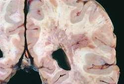 Sclerosis Adult onset multiple