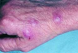Fish Tank Granuloma Definition Of Fish Tank Granuloma By Medical Dictionary