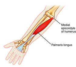 Palmaris Longus     it can still have a purpose Palmaris Longus