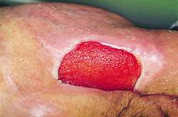 a description of decubitus ulcers also known as bedsores Also known as bed sores ulcers that are caused by an area of skin being broken down by something continuously rubbing or pressing against it the ulcers themselves are caused by pressure which reduces blood flow to the area, allowing the skin to die, and an ulcer to form.