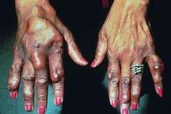 high uric acid elevated liver enzymes diet for high uric acid and high blood pressure treat high uric acid ayurveda