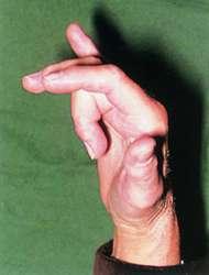 Trigger finger blackberry thumb