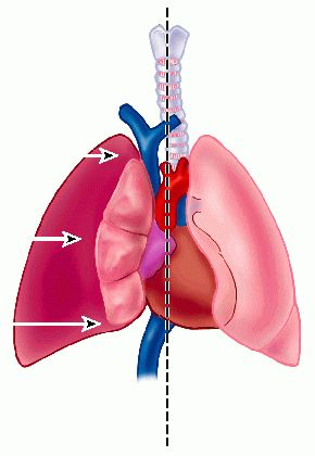 pneumothorax - definition of pneumothorax in the Medical ...