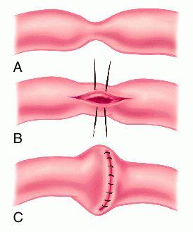 The Abc S Of Crohn S Amp Uc R Amp S Caring For Crohn S Amp Uc