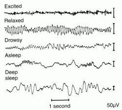 Electroencephalogram | definition of electroencephalogram by ...