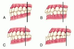 Malocclusion can be treated by orthodontic means