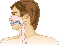 Oropharyngeal airway | definition of oropharyngeal airway by ...
