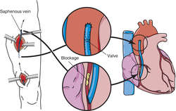 On average, how much is coronary artery bypass graft surgery in the UK?