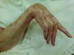 contracture | definition of contracture by medical dictionary, Skeleton
