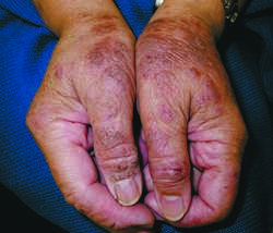 Atopic Dermatitis - PubMed Health