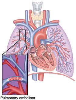 embolism | definition of embolism by medical dictionary, Skeleton