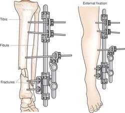 External fixator | definition of external fixator by Medical ...