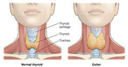 goiter | definition of goiter by medical dictionary, Skeleton