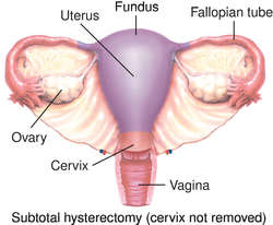 Hysterectomy definition of hysterectomy by medical for Terrace meaning in tamil