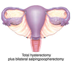 Sexual Desire After Hysterectomy